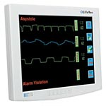 NDS 15 Lifevue Surgical Resistive Touch Monitor