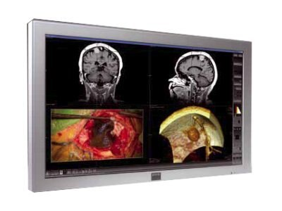 Barco MD-4221 42 Full High Def Medical Display DICOM, K9303000A