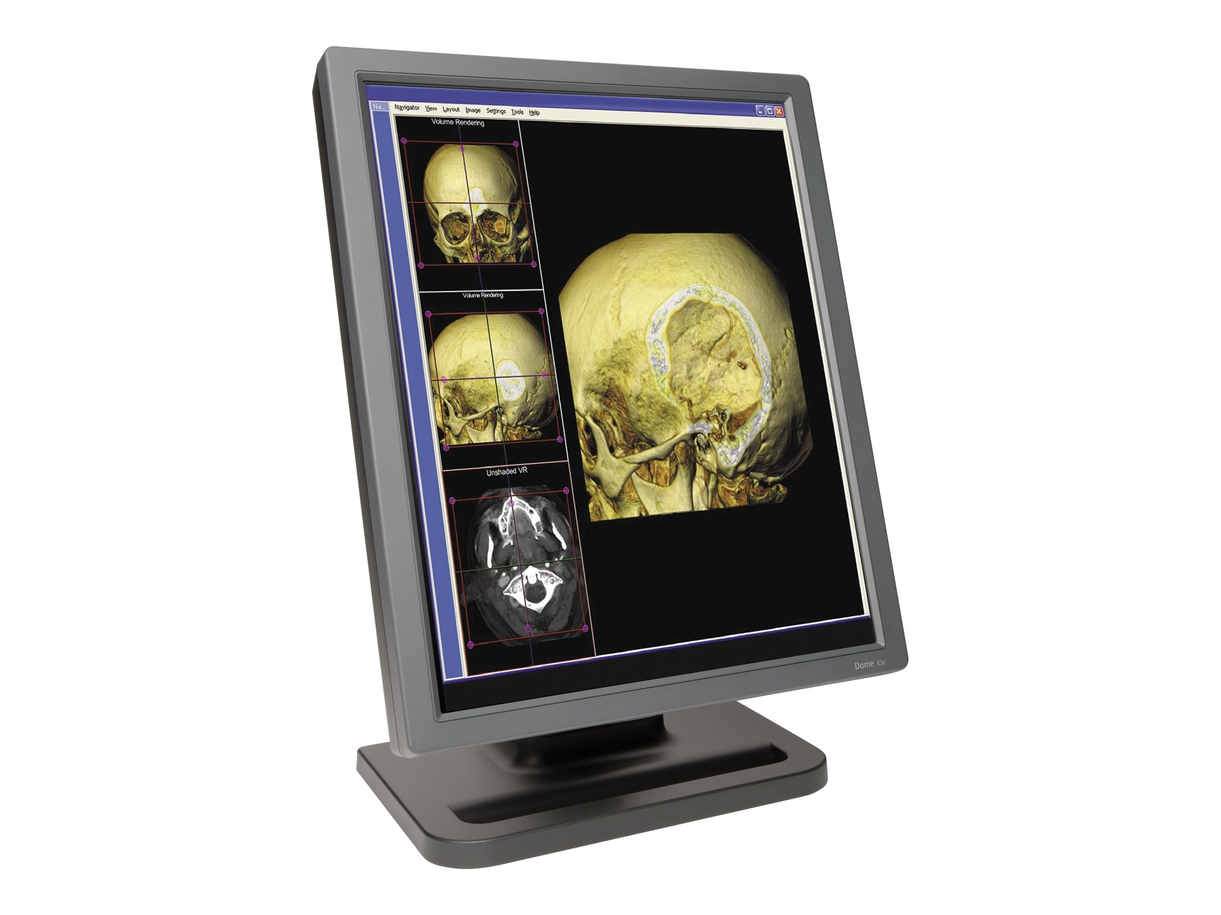 NDS Surgical Imaging 997-5703-00-1NN Image 1