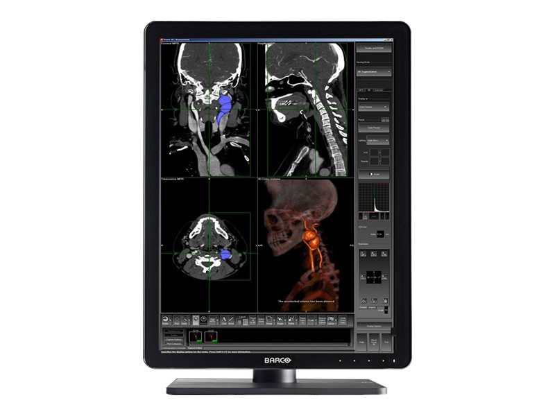 Barco (2) 21.3 Nio Color 3MP LED-LCD Medical Displays with MXRT-5500 Controller, K9602589, 17689967, Monitors - Medical