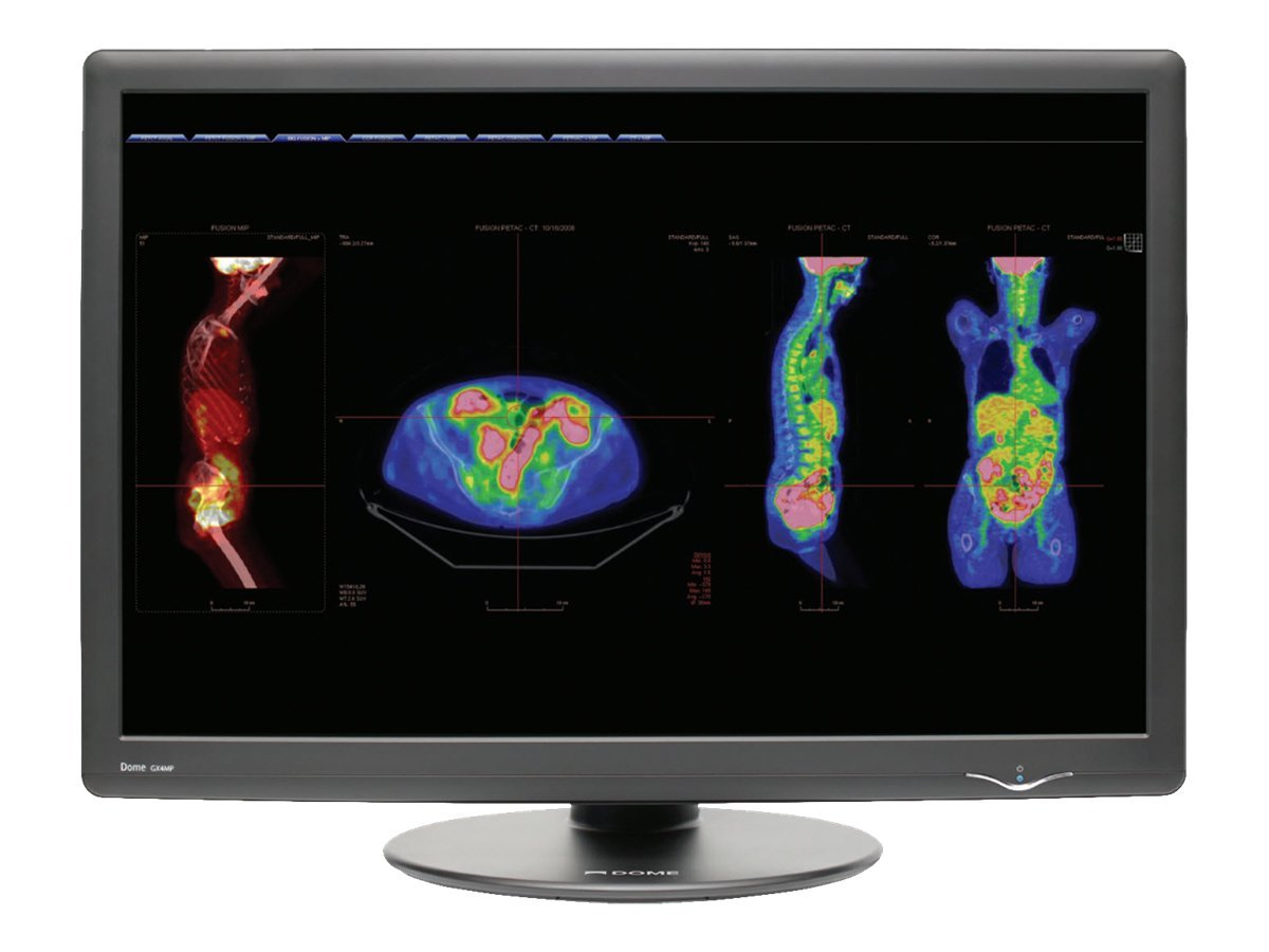 NDS 30 GX4MP-1 4MP LCD Medical Monitor, Gray