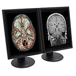 NDS 21.3 2MP S2C LED-LCD Dual Monitors with Quadro K2000D Graphics Card, 997-6802-00-2FN, 30594170, Monitors - Medical