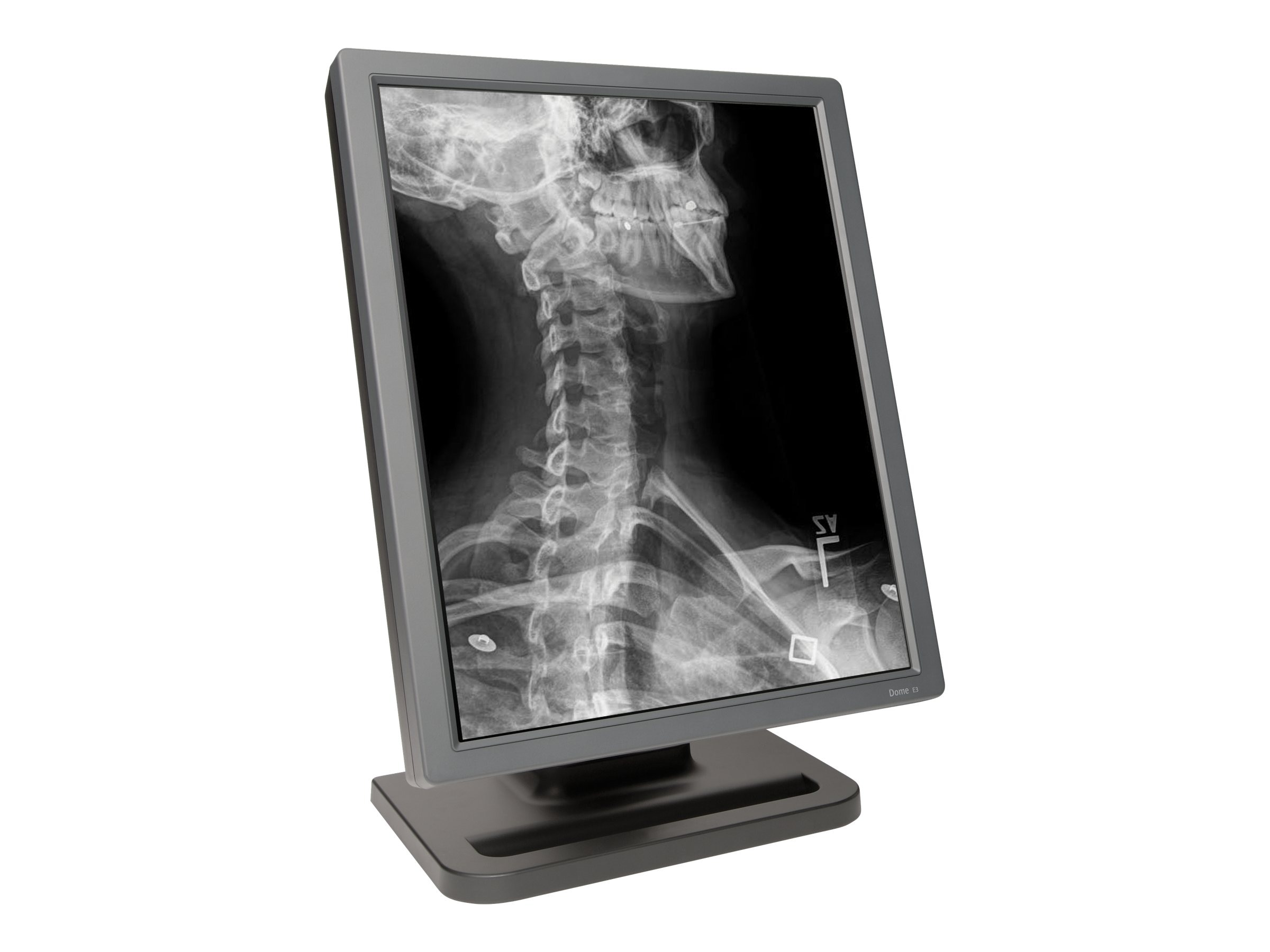 NDS Surgical Imaging 997-5813-00-1FN Image 1