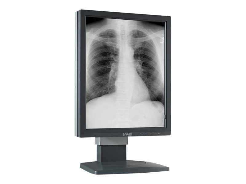 Barco Coronis 5MP 2 Head LCD Monitor, Black, K9601738, 14626477, Monitors - Medical
