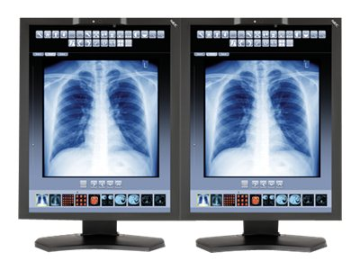 NEC (2) 21 MD211C3 3MP LED-LCD Medical Monitor with Graphics Card