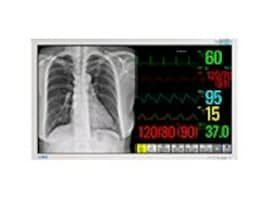 NDS 43 Radiance G2 Surgical LED-LCD Monitor with Single Fiber, 90R0070, 19506861, Monitors - Medical