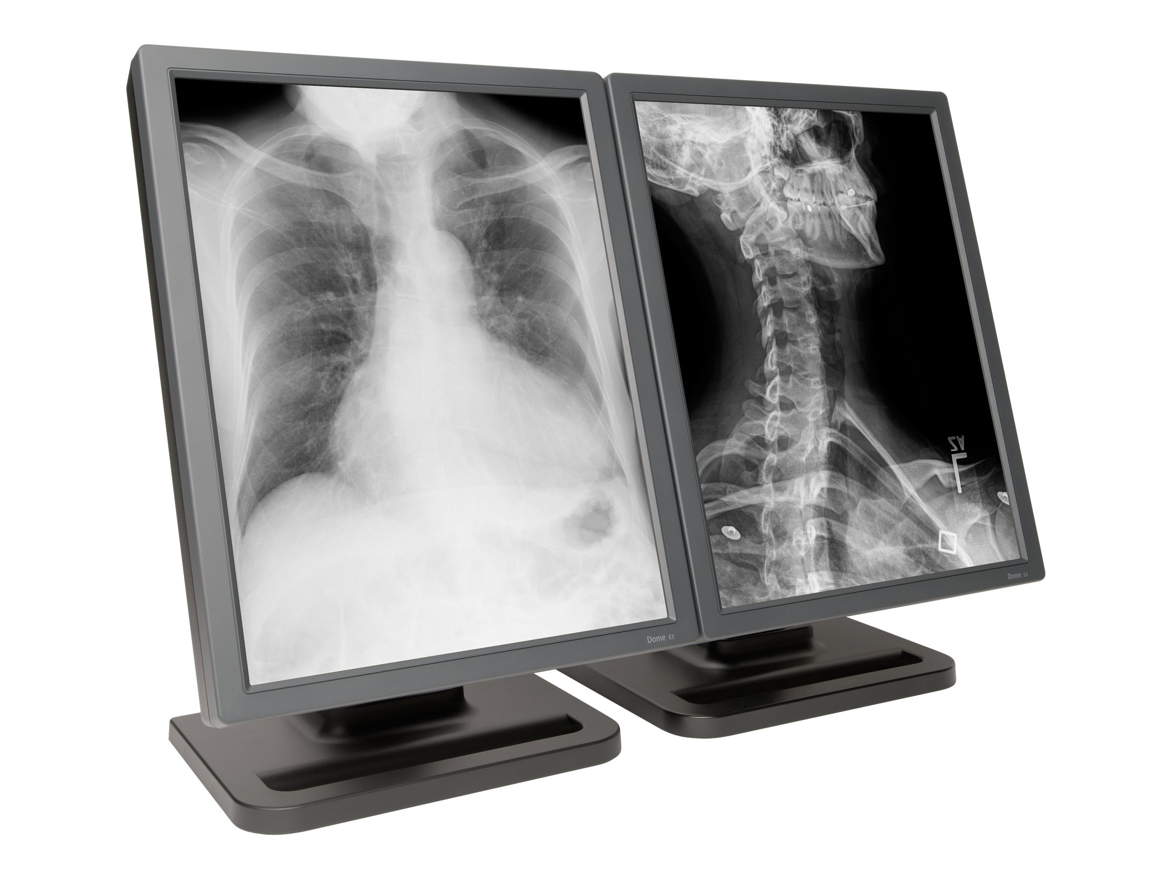 NDS 20.8 E3 3MP Dual-Head Monitor with Quadro K2000D, 997-5713-00-2FN, 16262021, Monitors - Medical