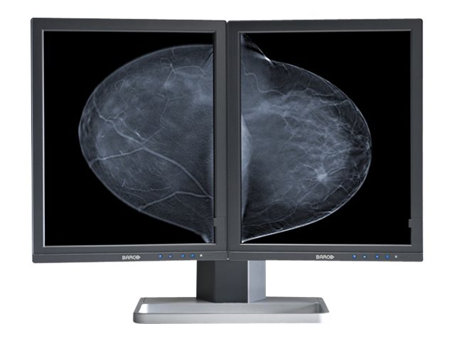 Barco 21.3 Mammo Tomosynthesis 5MP LCD Dual Monitors, Black, K9602004