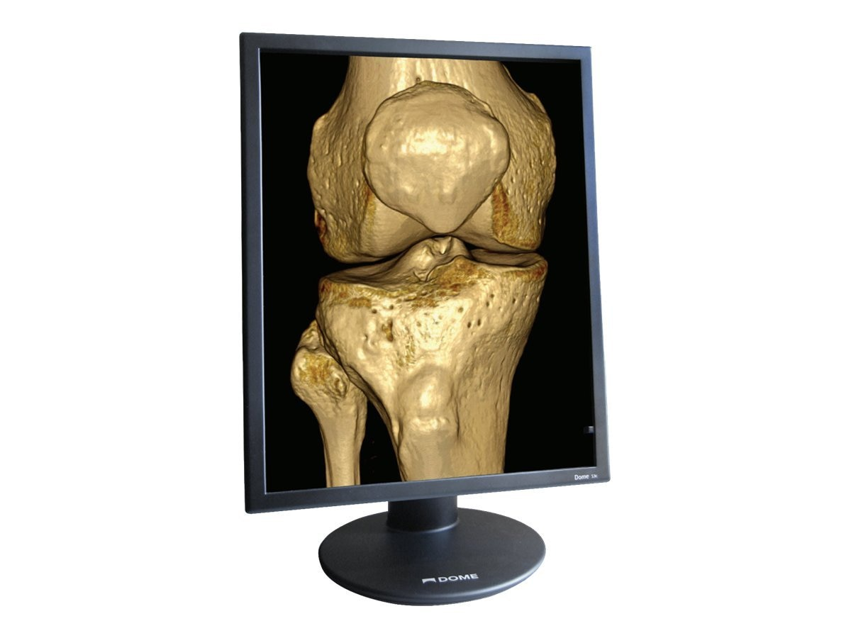 NDS Dual-Head 21.3 Dome S3c Color Medical Display with Quadro 2000D Graphics Controller