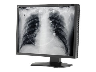 NEC 21 MD211G3 Grayscale 3MP Medical Monitor, MD211G3