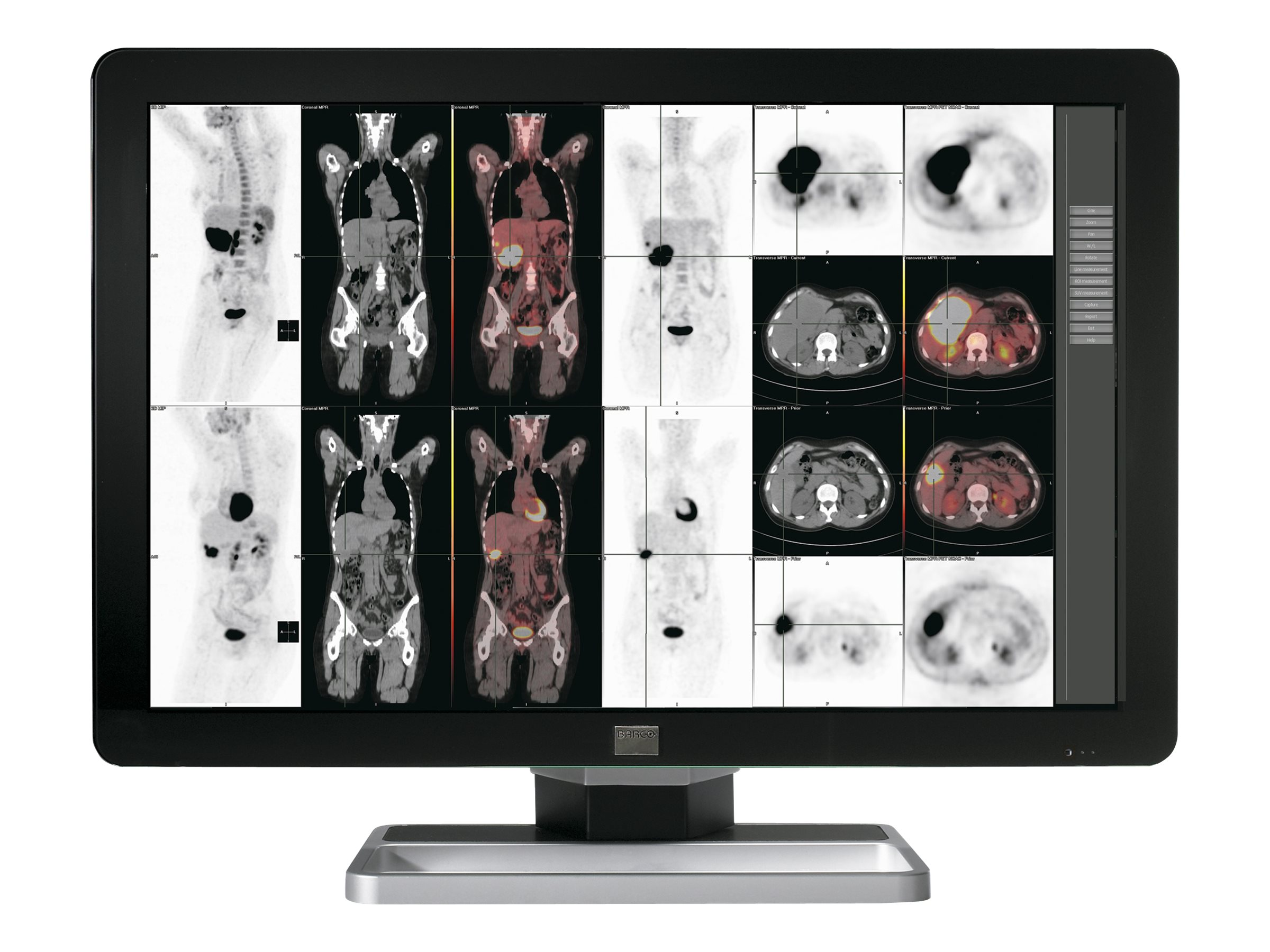 Barco 30.4 Coronis Fusion 6MP LED-LCD Display, Black, K9602743, 30732165, Monitors - Medical