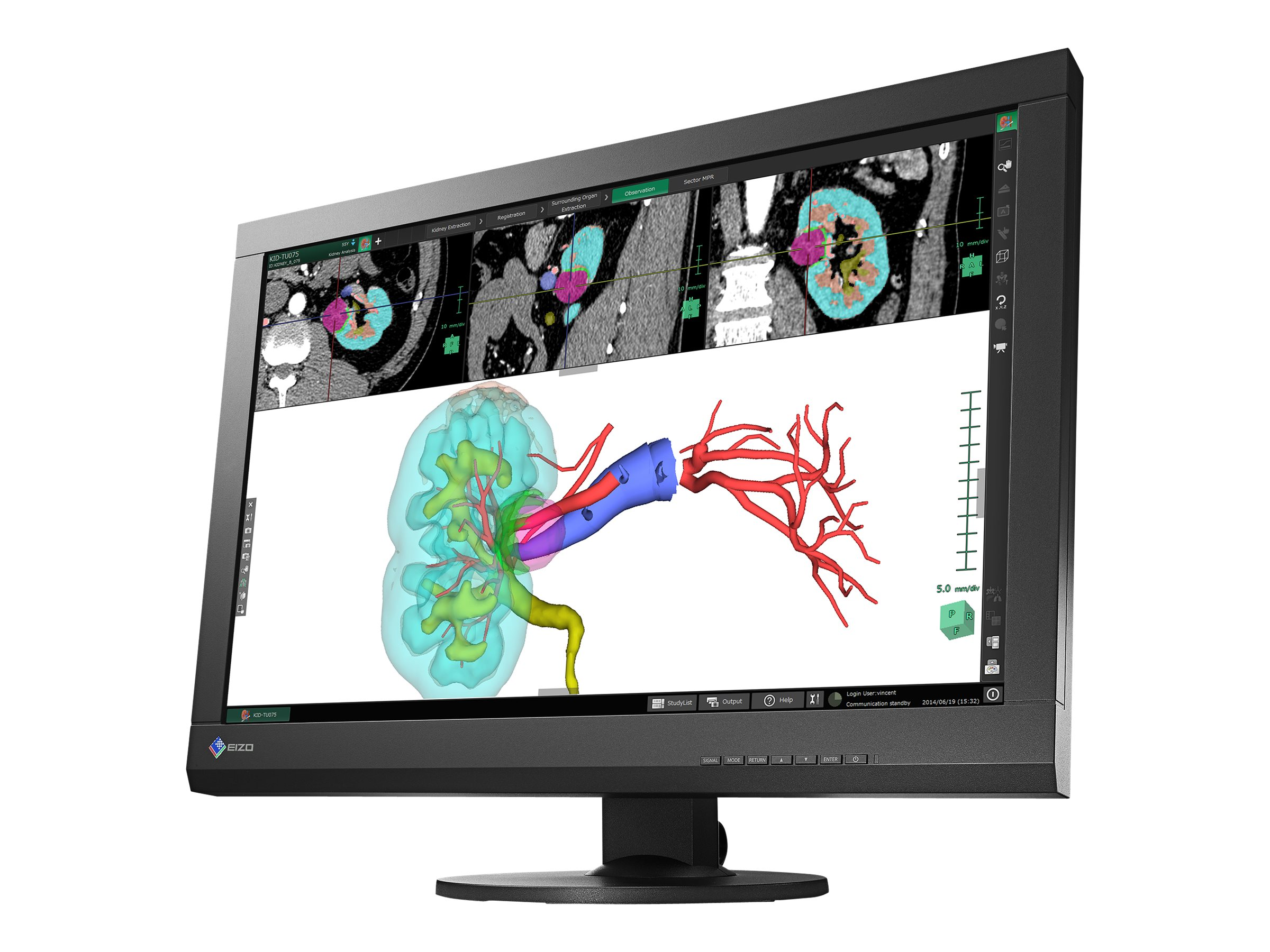 Eizo Nanao 24.1 MX242W LED-LCD Monitor, Black, MX242W-BK, 18498290, Monitors - LED-LCD