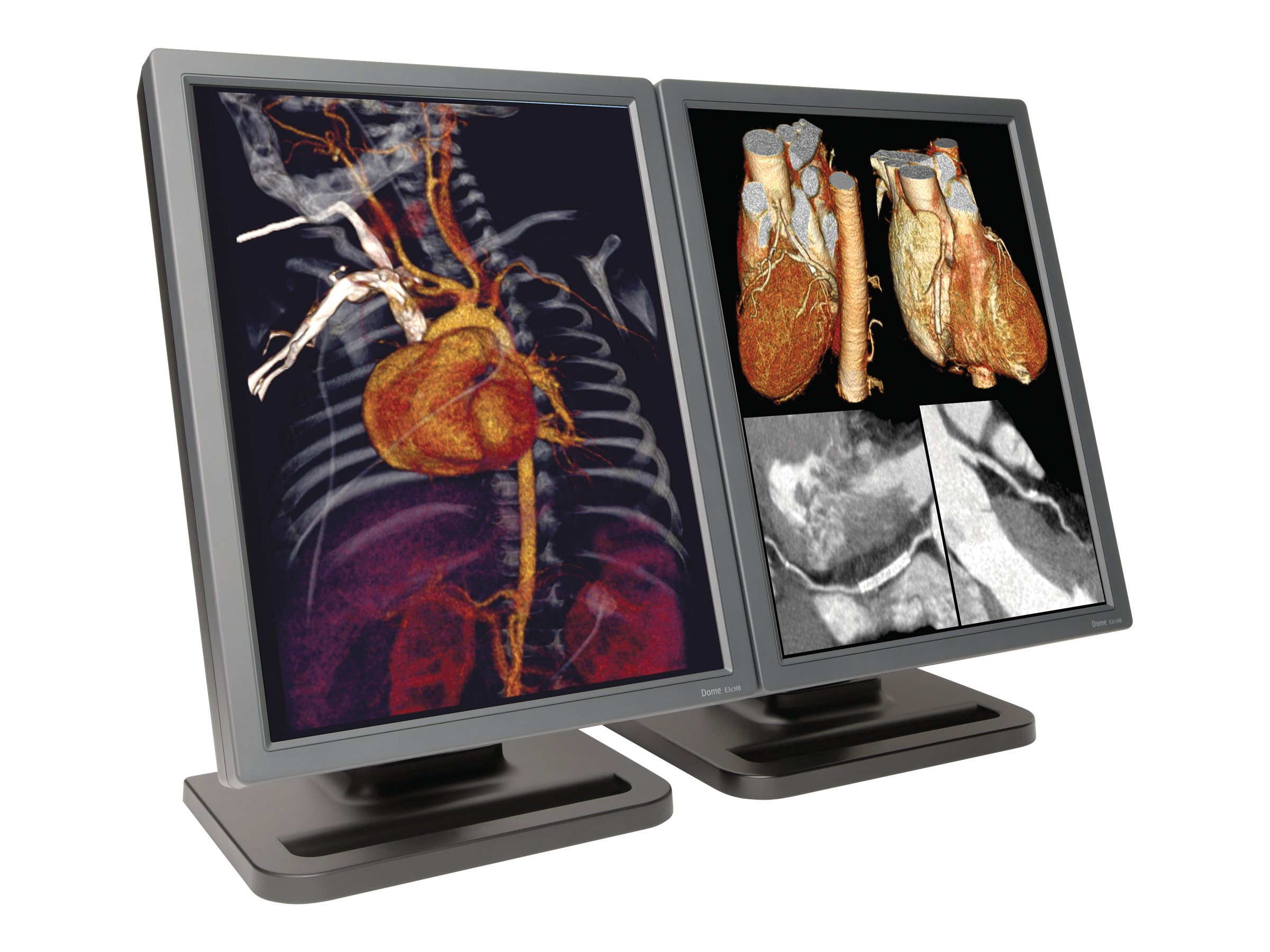 NDS 21.3 Dome E3c High-Bright Dual-Head Color Display, No Video Card, 997-5703-00-2NN, 13081524, Monitors - Medical