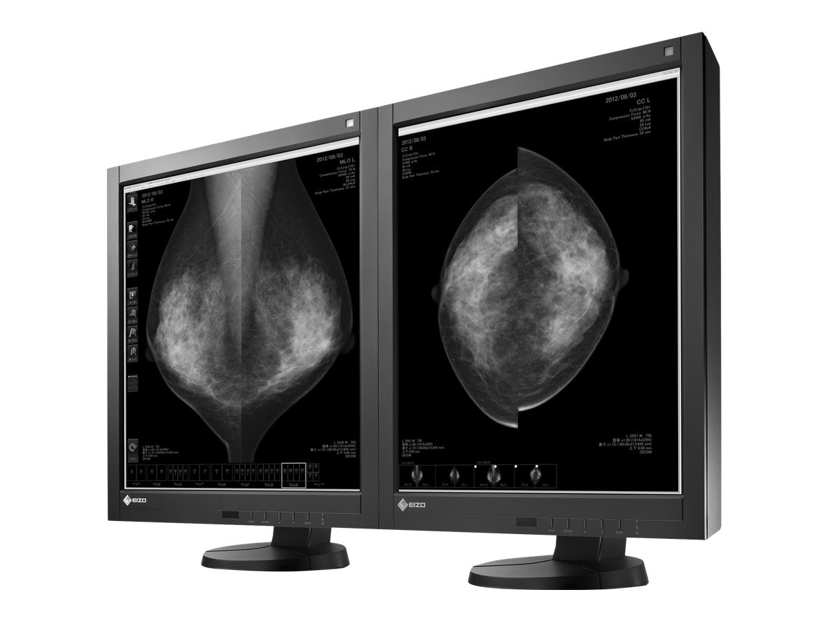 Eizo Nanao 21.3 LED Mono 5MP Medical Monitor, GX540-CL-P-BK, 16372351, Monitors - Medical