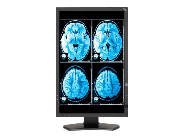 NEC 24 MD242C2 LED-LCD Monitor, Black
