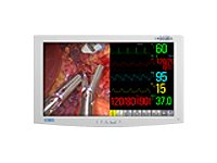 NDS 26 Radiance G2 High-Bright Full HD LED Monitor, White, 90R0052, 16806391, Monitors - Medical
