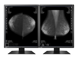 Eizo Nanao 21.3 GX550-P-BK 5MP Medical Monitor, Black, GX550-P-BK, 33700011, Monitors - Medical