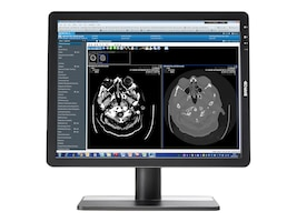 Barco 21 Eonis LED-LCD 2MP Monitor, Black, K9301880A, 17762861, Monitors - Medical