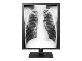 LG 21.3 IPS 3MP Diagnostic Monitor, Black, 21HK512D-B, 37389013, Monitors - Medical